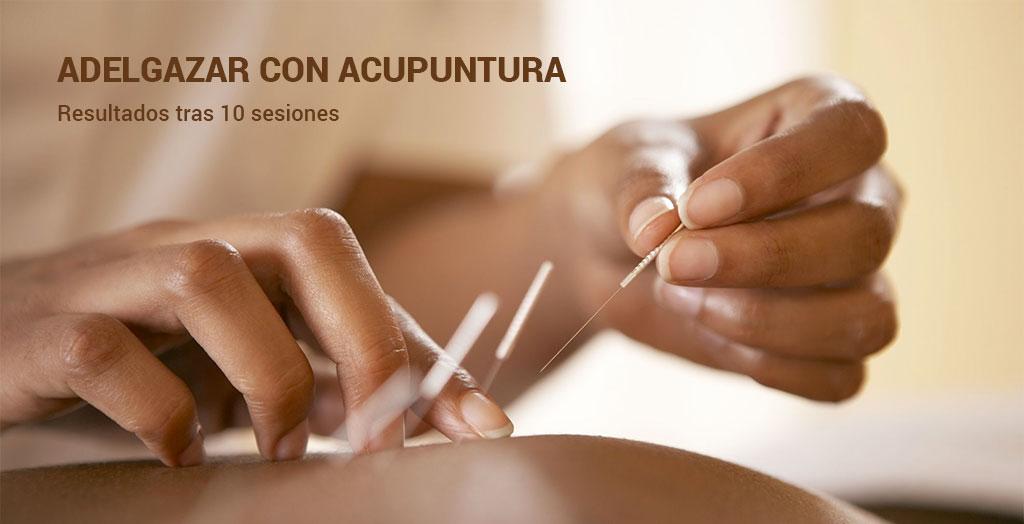 Sesiones de acupuntura para adelgazar: resultados