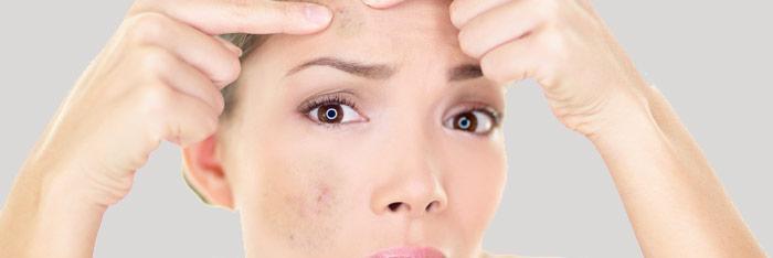 Cómo combatir las manchas oscuras de la piel
