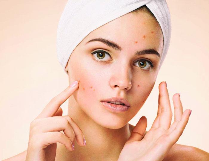 terapia luz polarizada para el tratamiento de acné