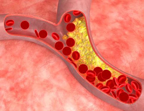 Las mentiras del colesterol