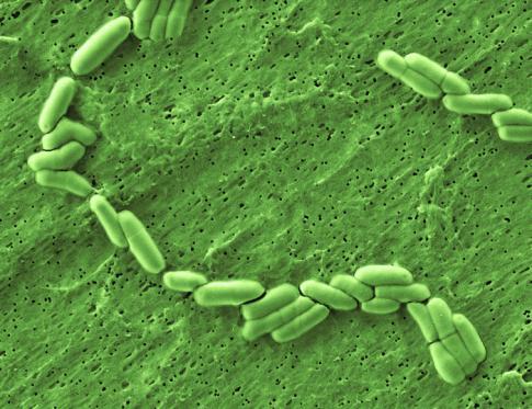 Bifidobacterias las bacterias intestinales amigas