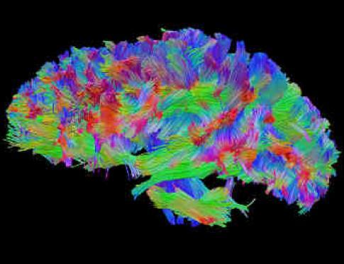 Daño cerebral adquirido y como tratar con nutriterapia