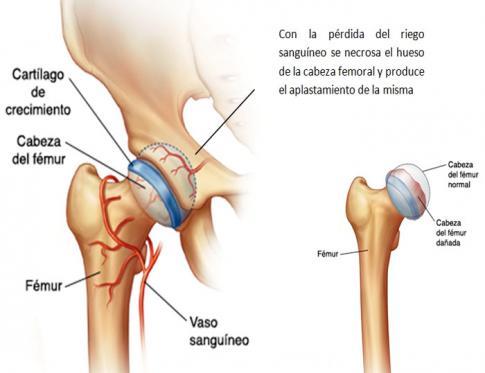 Enfermedad de perthes y Osteopatía