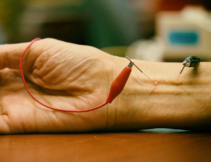 La evolución de la acupuntura y su relación con el dolor