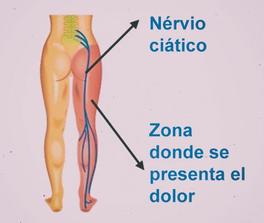 Dolor provocado por el nervio ciático
