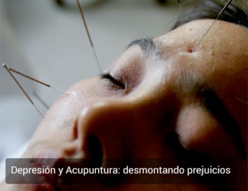 Depresión y acupuntura