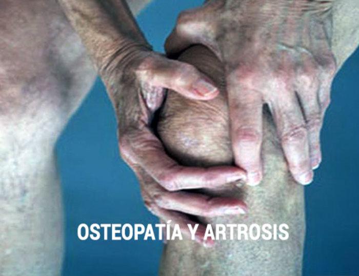 La artrosis en la rodilla