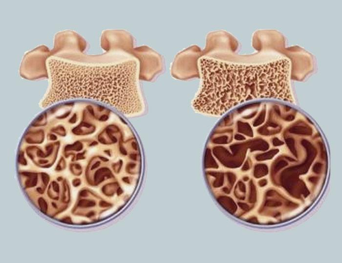 ¿Tienes Osteoporosis?: ¡Necesitas recargar los riñones!