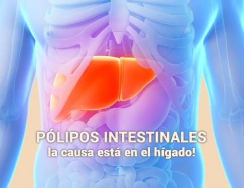 El higado y los pólipos intestinales
