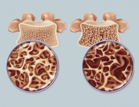 Osteoporosis: problemas con el riñón en Medicina tradicional china