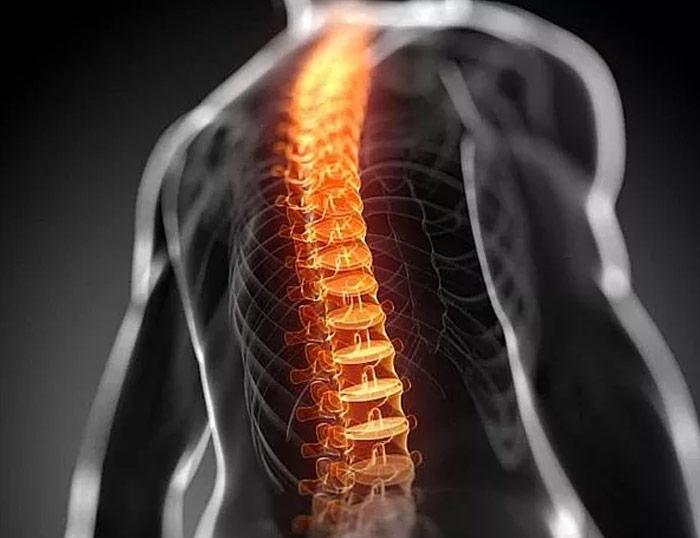 Curvas raquídeas, índice Delmas y dolor lumbar