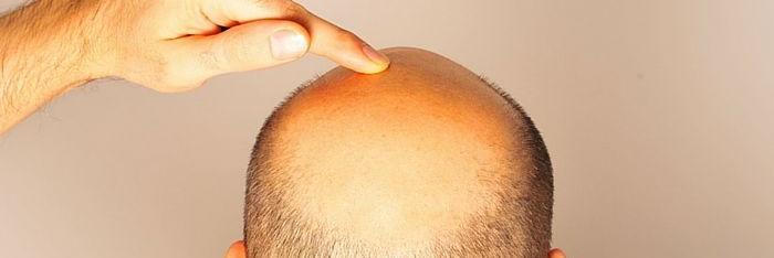 Sobre la calvicie y la regeneración capilar