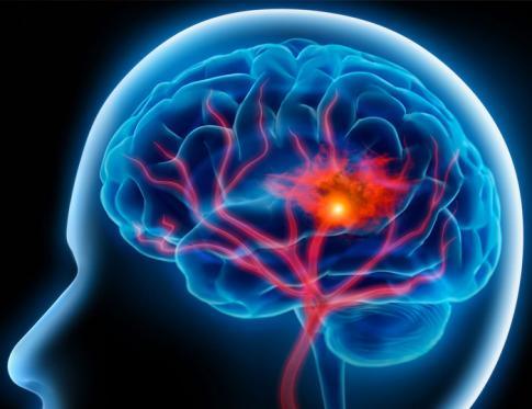Ictus cerebral y tratamiento con Naturopatía