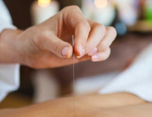 Utilizando la acupuntura para adelgazar
