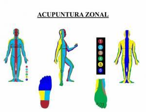 Curso de acupuntura zonal y examen profesional de ex-alumnos