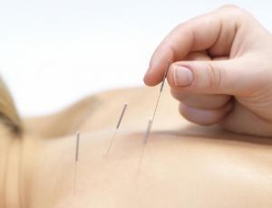 Curso de punción seca - fisioterapia invasiva